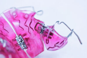 Kieferorthopädie Renner in Hof, herausnehmbare Zahnspange
