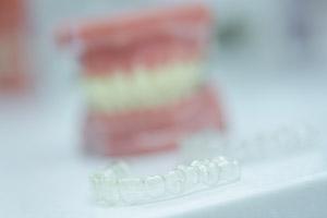 Unsichtbare Zahnkorrekturen